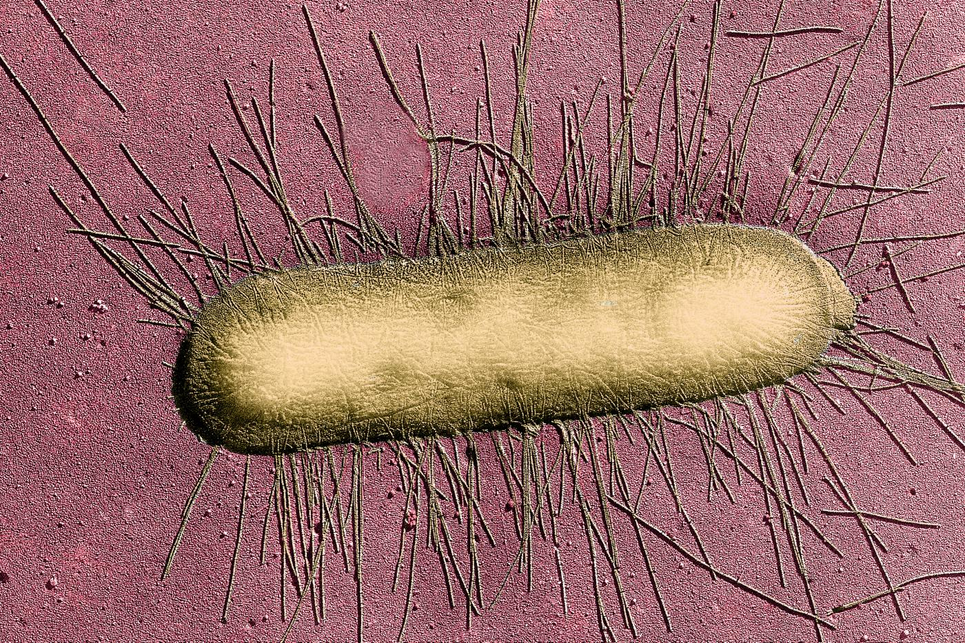 E Coli Infection Causes Symptoms and Prevention