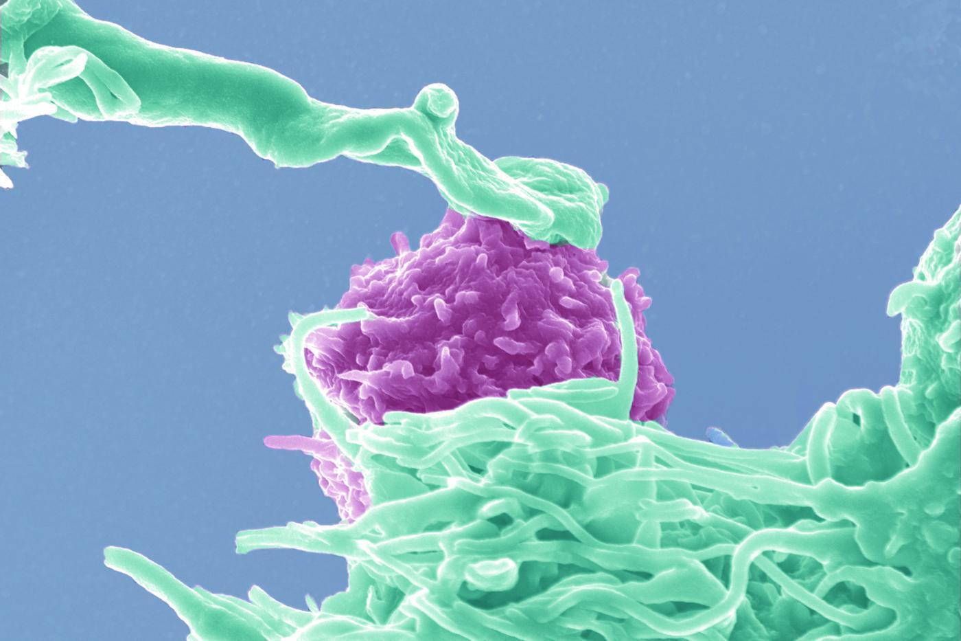 VIH - HIV - Institut Pasteur