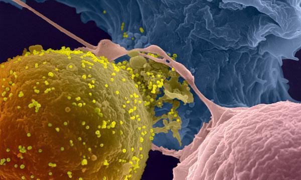 La recherche sur le VIH/sida - Institut Pasteur