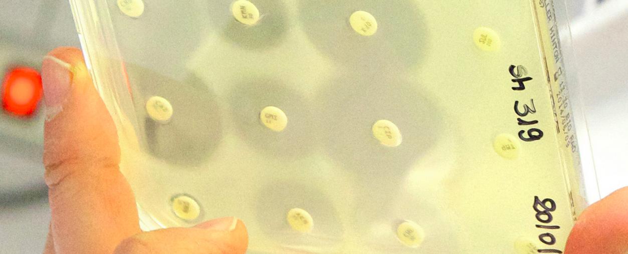 Face à l'antibiorésistance, une nouvelle arme tueuse de bactéries - Institut Pasteur