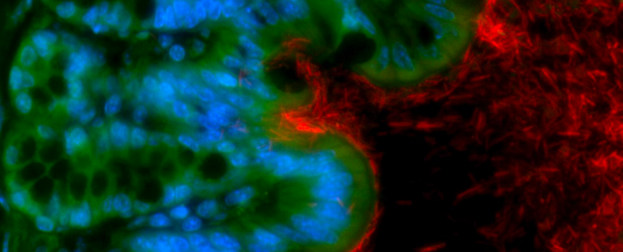 Un déséquilibre du microbiote intestinal favorise la survenue d'un cancer colorectal- Institut Pasteur