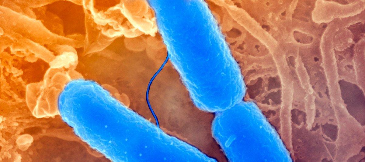 Shigellose Informations Et Traitements Institut Pasteur