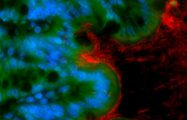 Un déséquilibre du microbiote intestinal favorise la survenue d'un cancer colorectal - Institut Pasteur