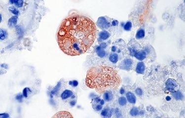 Entamoeba histolytica - Institut Pasteur