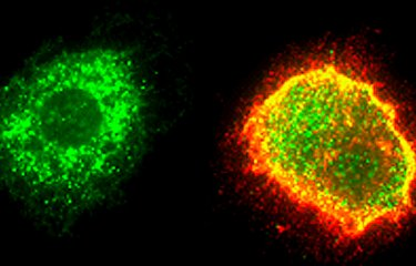 Fiches maladies - Fièvre de Lassa - Institut Pasteur