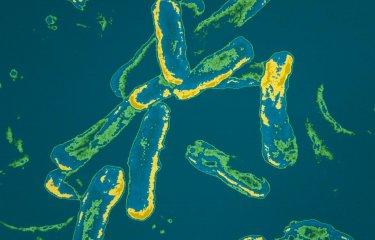 Pseudomonas aeruginosa, bactérie opportuniste, impliquée dans la mucoviscidose _ Institut Pasteur