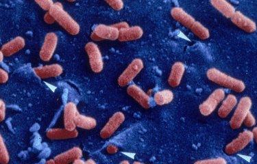 Fiches maladies - Listériose - Institut Pasteur
