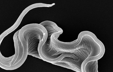 Fiches maladies - Maladie du sommeil - Institut Pasteur