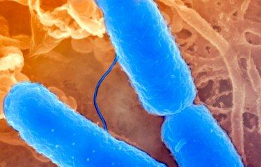 Fiches maladies - Shigellose - Institut Pasteur