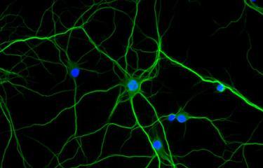 Comment la nicotine agit sur le cerveau des schizophrènes