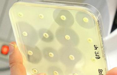 Face à l'antibiorésistance, une nouvelle arme tueuse de bactéries