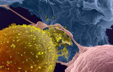 Sida : des anticorps capables d'éliminer les cellules infectées