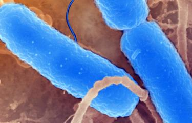 Dysenterie épidémique : enquête génomique sur l'exportation d'un fléau européen - Institut Pasteur