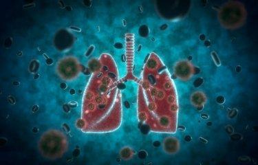Covid-19 - poumons - lung - Institut Pasteur