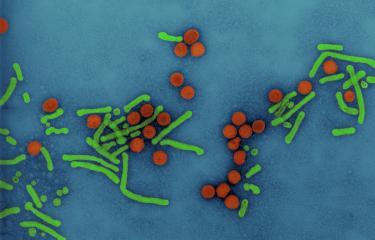 virus hépatite B - Institut Pasteur