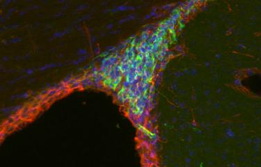 Stem cell neurons - Institut Pasteur