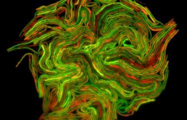 Mycobacterium - fluoresecence - Institut Pasteur