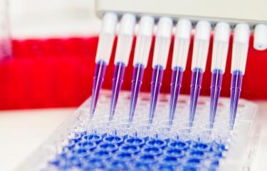 Réseau International des Instituts Pasteur: La stratégie scientifique collective s'intensifie