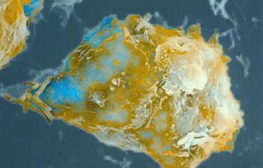 Macrophage phagocytant le bacille du BCG - © Institut Pasteur/Antoinette Ryter