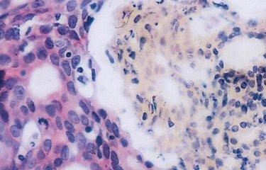 Fighting cancer - Institut Pasteur