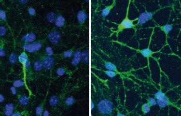 La dépression et l'efficacité des antidépresseurs dépendent de la composition du microbiote intestinal - Institut Pasteur